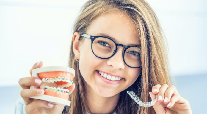Top 7 Reasons to Choose Invisalign Over Other Teeth-straightening Methods