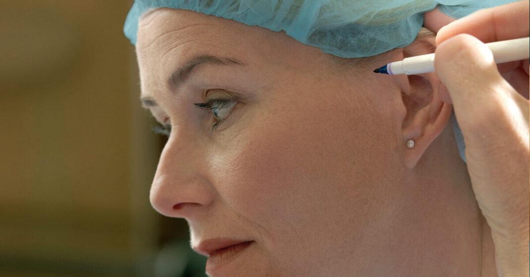 Understanding post-operative instruction after undergoing facelift surgery