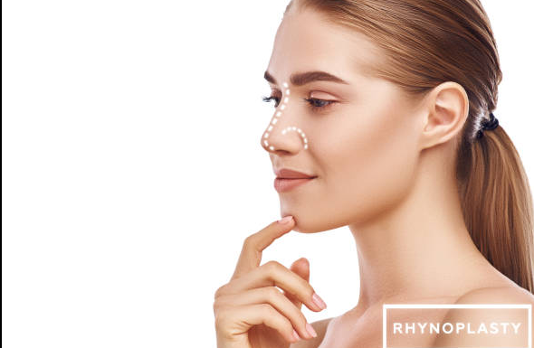 MYTHS AND TRUTHS ABOUT RHINOPLASTY: WHAT IS IMPORTANT TO KNOW