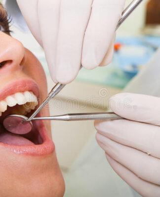 Diseases of the teeth